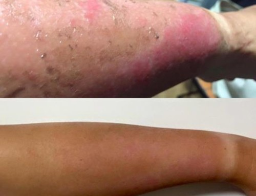 Amazing Healing Results From Scalding Burns