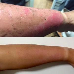 burnt-arm
